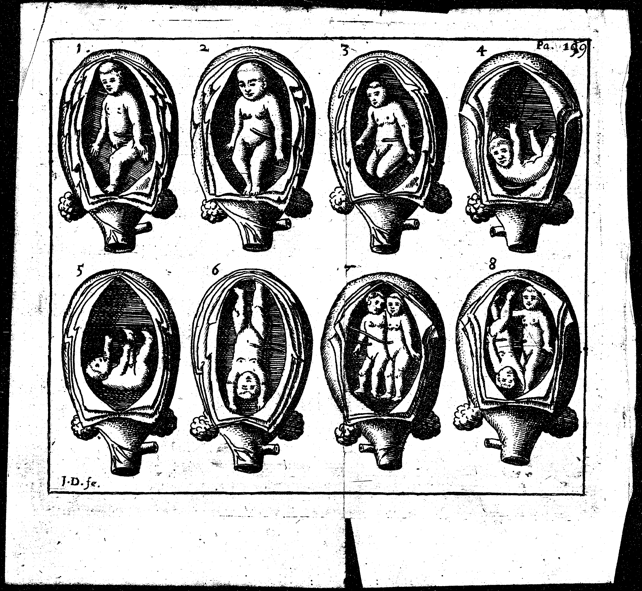 An illustration of twins in the uterus, from Jane Sharp's The Midwives Book (1671).
